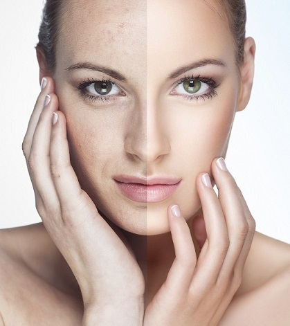 laser skin treatments midwest facial plastic surgery
